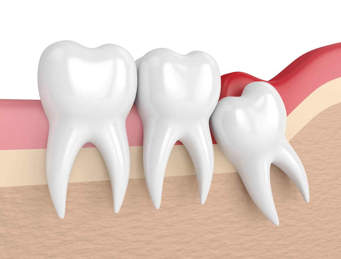 Sensitive Teeth After Wisdom Tooth Extraction Pickett Family Dental
