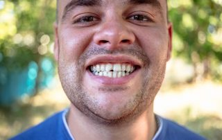 Chipped or Broken Tooth Treatment